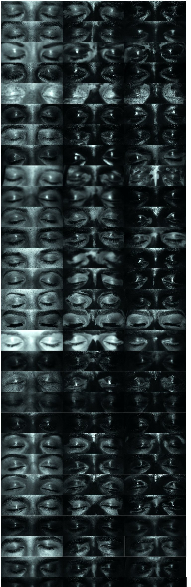 A panel of UV images of eyelid regions, before (left) or after sunscreen application (middle). Right hand column is the same person who has applied sunscreen after receiving public health information