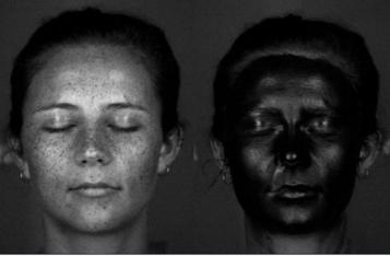 UV photographs
