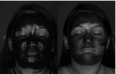 UV images after sunscreen or spf moisturiser