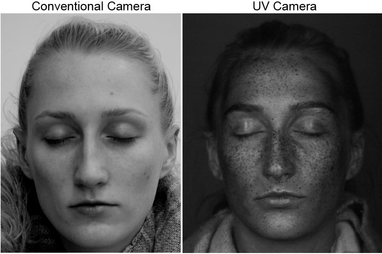 UV imaging comparison
