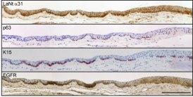 human AS - stem cells + LaNt